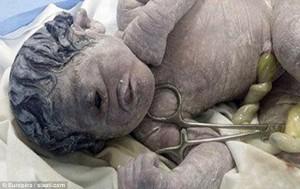 Terkena Radiasi, Bayi Lahir Dengan Satu Mata