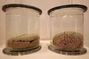Pria Ini Curi Otak Manusia Untuk Dijual Online