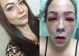 Gunakan Pewarna Rambut Di Alis, Mata Wanita Ini Nyaris Buta