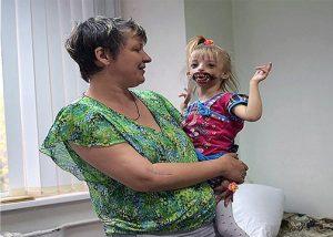 Lahir Tanpa Bibir, Anak Ini Dibenci Keluarganya Sendiri