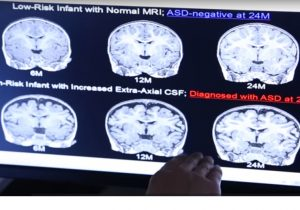 Teknologi AI Kelak Dapat Deteksi Autisme Pada Bayi