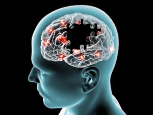 Penelitian: Implan Sel Otak Babi Kurangi Gejala Parkinson