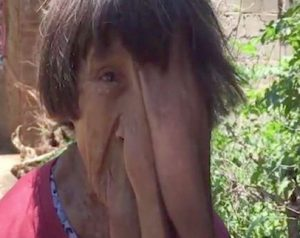 Menderita Tumor Langka, Wanita Ini Dijuluki Wanita Gajah