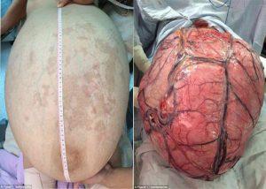 Dokter Keluarkan Tumor Seberat 32 Kg Dari Perut Wanita Ini