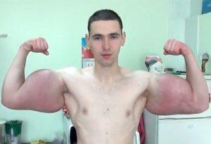 Pria Rusia Pamer Otot Setelah Suntik Obat Synthol