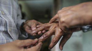 Lima Hal Menarik Yang Harus Anda Ketahui Tentang Penyakit Kusta