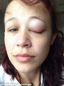 Tato Mata, Wanita Ini Mengeluarkan Air Mata Ungu