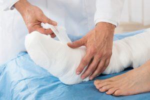 Lima Akibat Dari Kesalahan Dalam Penanganan Patah Tulang