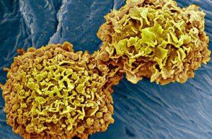 Ilmuwan Merancang Metode Tes Darah Pendeteksi Kanker