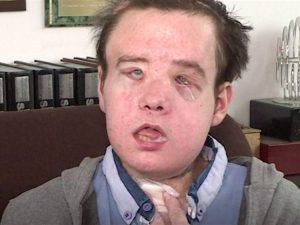 Pria Asal Perancis Menerima Transplantasi Wajah Kedua