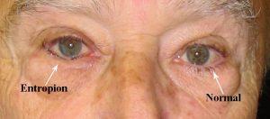 Entropion Penyakit Mata Yang Sering Dialami Oleh Lansia