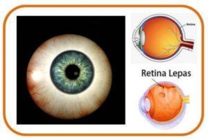 Belajar Dan Mengenal Apa Itu Ablasio Retina